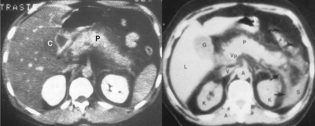 pancreatite autoimmune trattamento steroideo standard